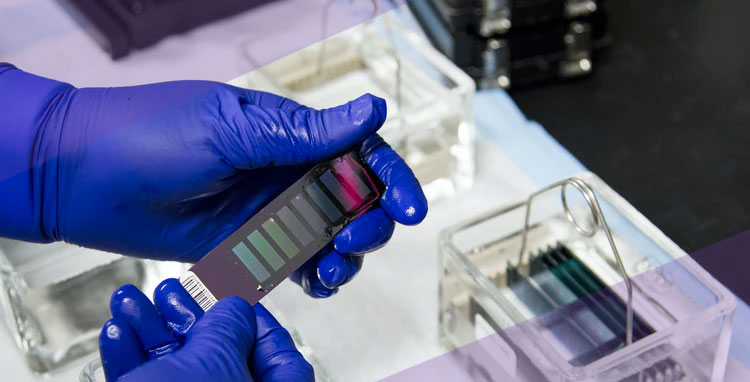 Genetic Testing: A Simple Guide